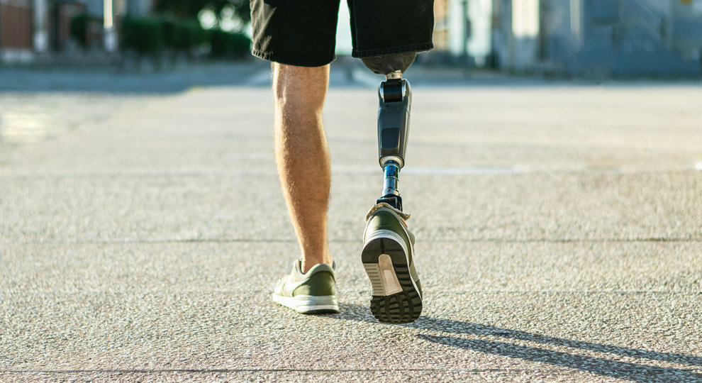 Prosthetic leg for loss of limb
